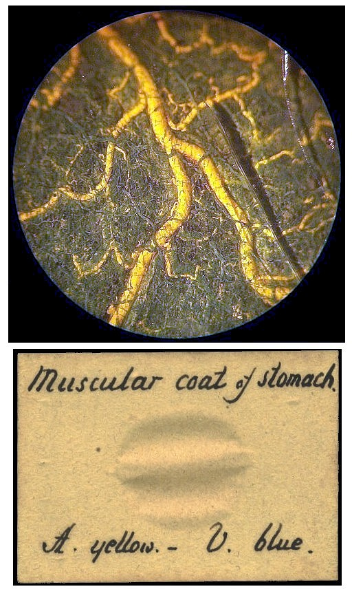 injected preparation  of the muscular coating of the stomach seen under the microscope showing the arteries and veins in different colors.